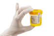 Urine Sample With Glove - 51951057