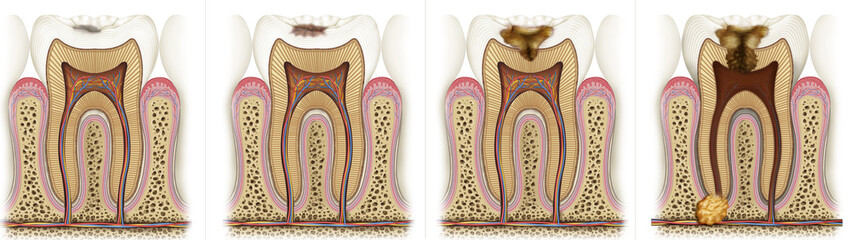 deterioration sequence a tooth