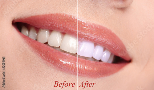 Woman smiling with teeth close-up