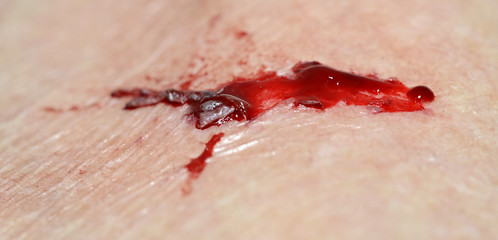 Torn and Bleeding Skin