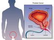 cancro della prostata