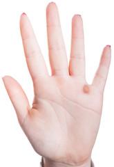 Warze an einer Hand