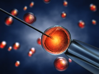 Intracytoplasmic sperm injection,In Vitro fertilization