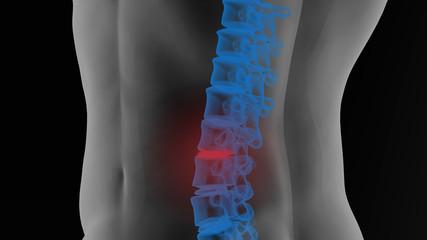 Pain in Lumbar vertebrae