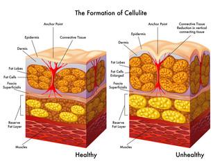 formazione della cellulite