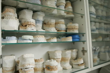 dental gypsum models