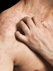 Man Scratching Allergic Skin