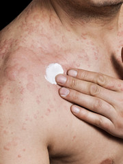 Man applying cream on irritated skin