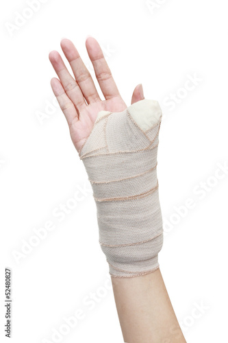 broken woman arm in a cast