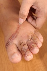 Wounds on women foot