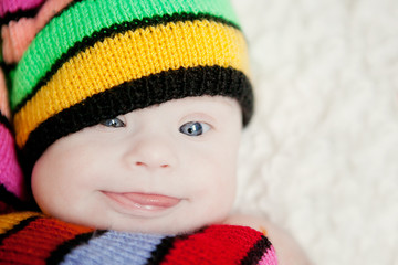 little baby in hat gnome with Downs syndrome