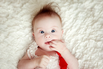 little baby girl with Downs Syndrome
