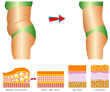 Cellulite - Woman's body before and after.