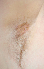 Mycosis in the armpit