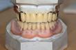 Dental-Nostalgie