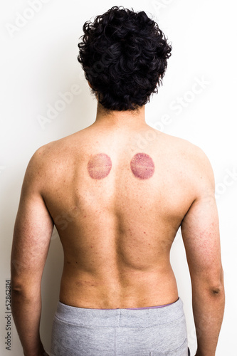 Rear view of man with marks from cupping therapy