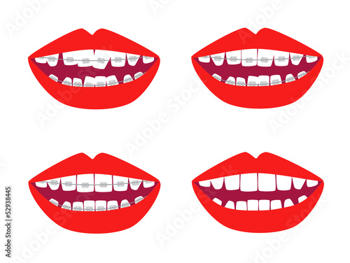 Vector braces mouths illustration before and after isolated