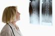 ärztin röntgenbild wirbelsäule