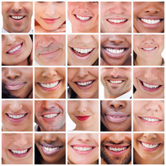 Collage of white smiles