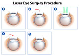 Laser Eye Surgery Procedure