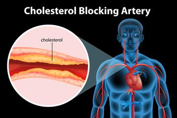 Ateriosclerosis