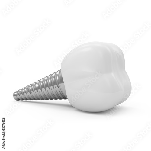 Tooth Implant isolated on white background