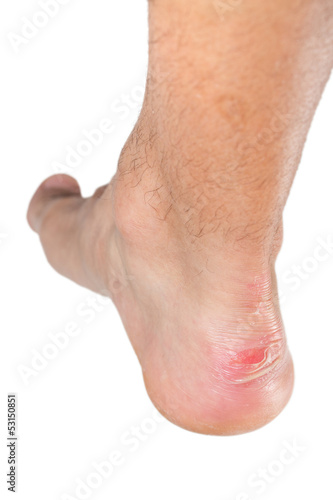 Ankle of male man with scratch