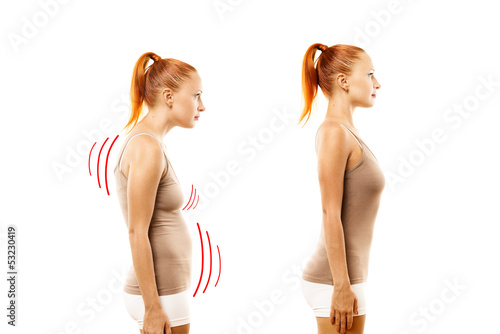 Leinwanddruck Bild Young woman with position defect and ideal bearing