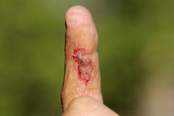 wound on male finger