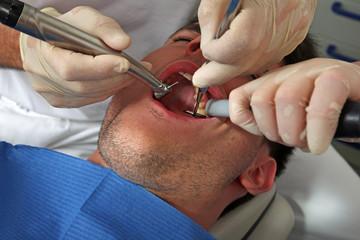 Zahn bohren