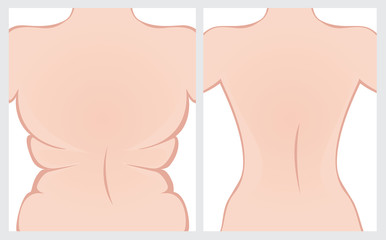 Fat back before and after treatment. Vector illustration.