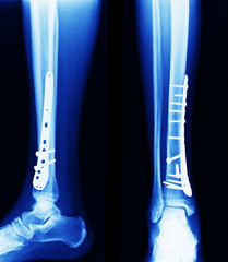 x ray of fractures bone