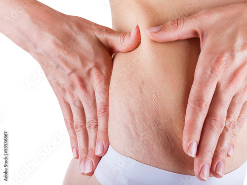 Stretch marks - 53536867