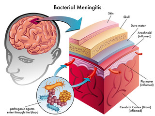 meningite batterica