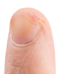 Finger cut with knife, three weeks after unjury, isolated