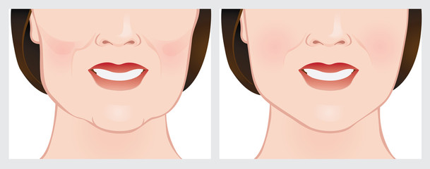 Face lift using dermal fillers, before and after