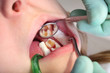 Dental cavity in tooth after drilling, dental rolls, mirror