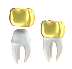 Golden Dental crowns and tooth, isolated on white