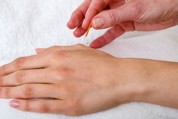Chiropractor applying acupuncture needles.
