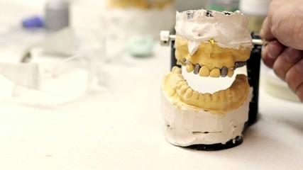 Dental technician workplace. Cast of a jaw.