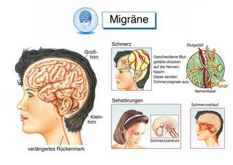 Migräne.Kopfschmerzen