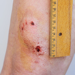 Accident, dog bite, puncture wound on human leg