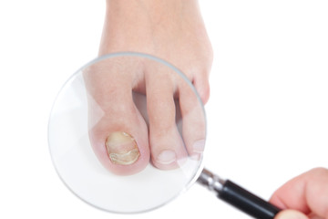 Doctor dermatologist examines the nail on the presence of the fu