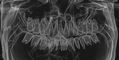 Human Teeth. X-Ray effect