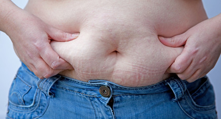 Overweight Woman Pinching Belly