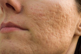 acne scars poster
