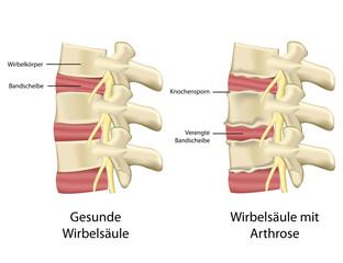 arthose der wirbelsäule