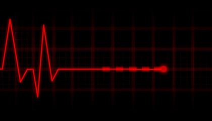 ECG Electrocardiogram.