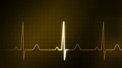 The gold graphic of EKG monitor