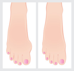 Bunion before and after operation